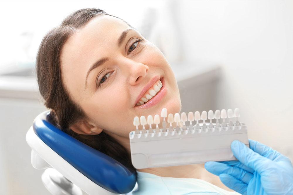 facetas o carillas dentales