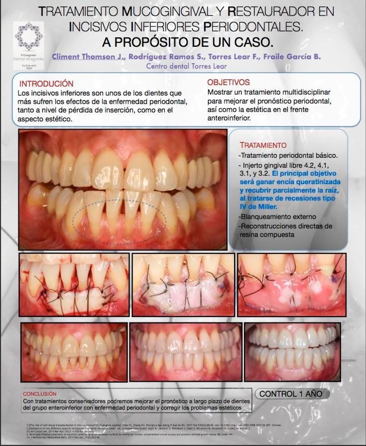 póster premio v congreso dental aragonés