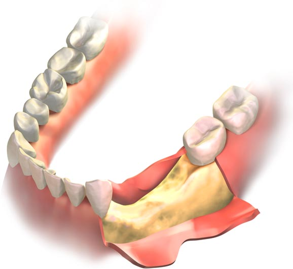 últimos avances en preservación alveolar previa a implantes dentales