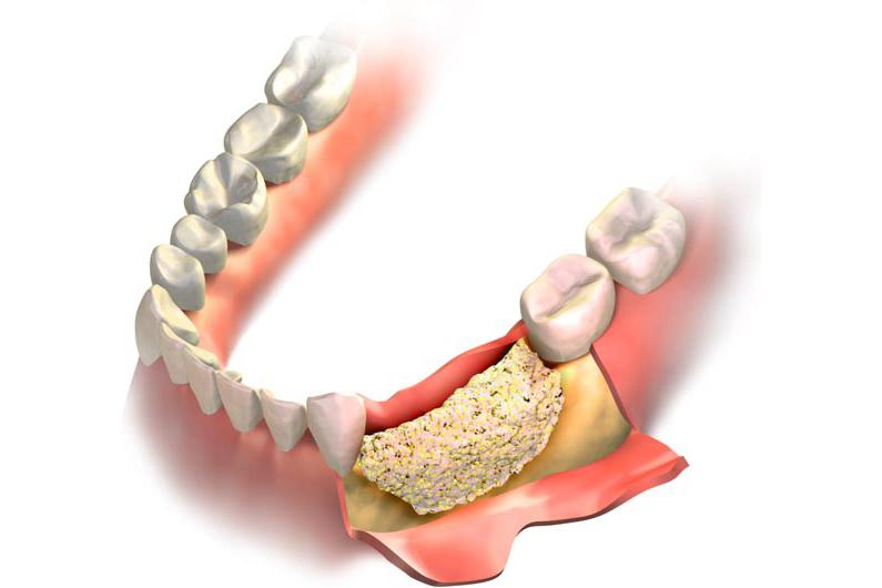 cómo evitar la pérdida de hueso después de una extracción dental
